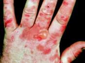 Diet Lifestyle Porphyria Natural Ayurvedic Treatment