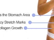 Ways Stretch Marks