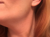 Talk Your Boss About Hickey Neck