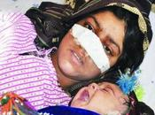 Cuts Wife's Nose When Protested Decision Marry Child