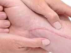 Natural Remedies Cuts Scrapes