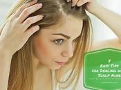 Easy Tips Dealing with Scalp Acne