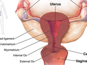 Herbal Treatment Ovarian Cysts