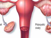 Alternative Treatment Pcos (Polycystic Ovarian Syndrome)