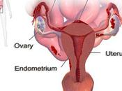 There Herbal Remedy Endometriosis Treatment?