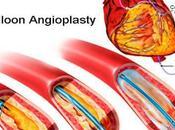 Angioplasty FAQs