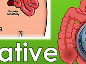Natural Products Treatment Ulcerative Colitis-Herbal Remedies