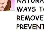 Super Easy Natural Ways Remove Blackheads