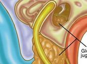 AYURVedic Treatment GLOMUS JUGULARE TUMOR
