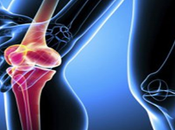 Manipal Hospital Bangalore India Offers Cost Knee Replacements Surgery Fight from Osteoarthritis