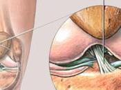 Ayurvedic Treatment Anterior Cruciate Ligament Injury
