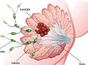 Deodorant Alternatives Avoiding Breast Cancer