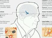 What Best Treatment Alzheimer's Disease?