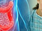 What Foods Avoid Have Ulcerative Colitis