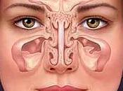 Natural Health Remedies Sinusitis