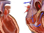 Congestive Heart Failure Causes Cardiologists Navi Mumbai