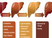 Ayurvedic Management Non-Alcoholic Fatty Liver Disease (NAFLD)