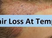 Hair Thinning Temples What About