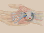 Tips Preventing Carpal Tunnel