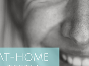 At-Home Teeth Whitening Experience