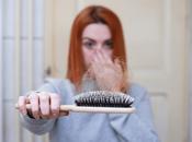 Relationship Between Stress Hair Loss