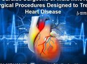 Best Cardiac Surgeons India Innovative Surgical Procedures Designed Treat Heart Disease