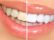 Should Consider Buying Teeth Whitening System
