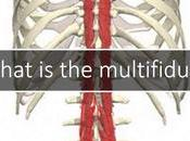 Multifidus Pain: Free Study Patients with Ongoing Back Pain