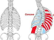 Degenerative Scoliosis? Exciting Non-surgical Treatment Option