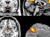 Neural Signature Affiliative Emotions.