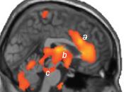 Brain Correlates Switching Consciousness Again