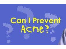 Prevent Acne!