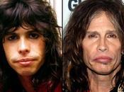 Good Steven Tyler Overuse Plastic Surgery?