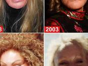 Horrible Plastic Surgery Photos: Worst Cases Through Photos