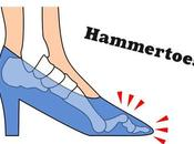 High Heels Giving Hammer Toes? Tips Prevention Treatment