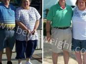 Almost Divorced Over Gastric Sleeve Surgery Mexico