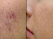 Acne Blemishes Fast With Home Remedies