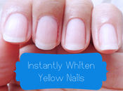 Instantly Whiten Yellow Nails